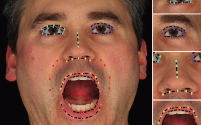 Attention-Driven Cropping for Very High Resolution Facial Landmark Detection